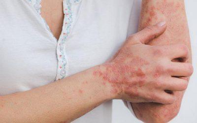 Psoriasis Treatment in Ayurveda